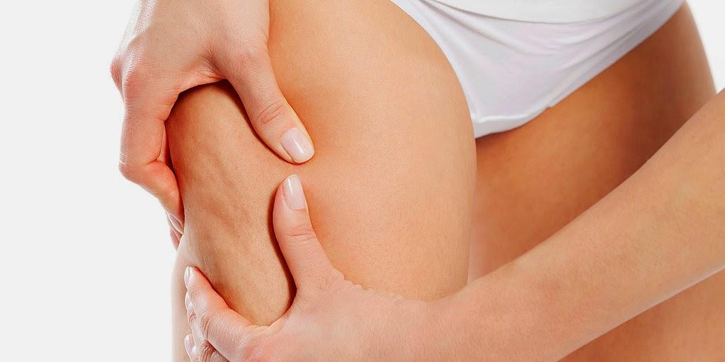 cellulite-adiposità-localizzata-centro-tfm-medicina-estetica-san-salvo