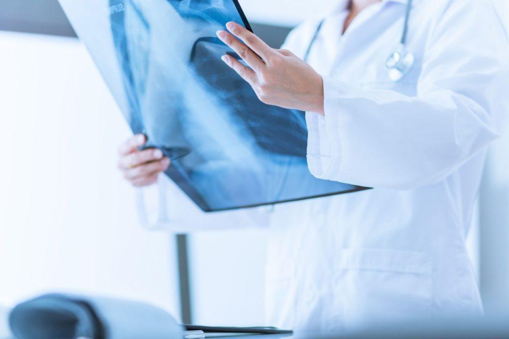rx-moc-tac-risonanza-ecografia-mammografia-tfm-san-salvo